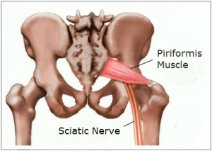 piriformis-muscle3